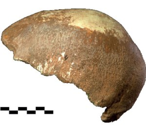 Manot-1 partial skull with features of ancient hominid and Neandratal (photo: Prof. I. Hershkovitz, in Nature, on-line Jan. 2015)